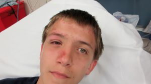 14-Year-Old Boy with Eye Injury