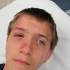 14-Year-Old Boy with Eye Injury