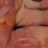 66-Year-Old Female with Painful Lesion on Sole