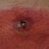 68-Year-Old Male with Painful Rash on Abdomen
