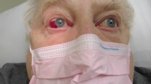 78-Year-Old Man with Acute Red Eye