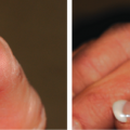 70-Year-Old Female with Swelling of Lateral Distal Nail Fold