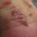 44-Year-Old Male with Pruritic Erythematous Plaques on Wrist