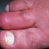 63-Year-Old Male with Painful Swelling of Second Toe