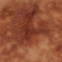 64-Year-Old Female with Asymptomatic Rash on Lower Back
