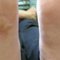 15-Year-Old Girl with Vesicular Rash on Feet