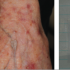 80-Year-Old Female with Eruption on Arms, Chest, and Back