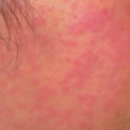 19-Year-Old Female with Rash Spreading to Extremities