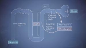 SGLT2 Inhibitors Help Block Glucose Reabsorption
