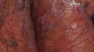 57-Year-Old Female with Tender Vulvar Skin