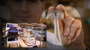 Artificial Kidney Implant Could Eliminate Need for Dialysis