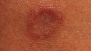 16-Year-Old Female with Asymptomatic Bump on Ankle