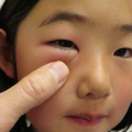 7-Year-Old Girl with Periorbital Swelling