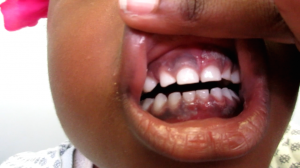 4-Year-Old Girl with Rash on Gums and Leg