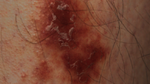 37-Year-Old Male with Asymptomatic, Purpuric Eruption