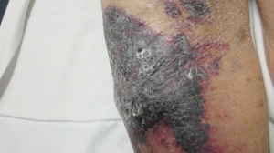 91-Year-Old Woman with Right Leg Contusion