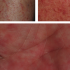 50-Year-Old Female with Tender Rash from Head to Toe
