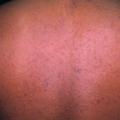 31-Year-Old Male with Pruritic, Papular Eruption on Trunk