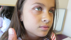 7-Year-Old Girl with 4-Days of Fever, Cough, and Rash