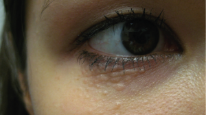 25-Year-Old Female with Papules in Infraorbital Areas