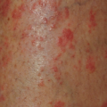 42-Year-Old Female with Psoriasis and New-Onset Rash