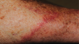 69-Year-Old Female with Rash on Lower Extremities