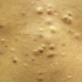 30-Year-Old Male with Asymptomatic Lesions on Abdomen