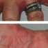 54-Year-Old Female with Chronic Dermatitis on Hand