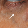 50-Year-Old Female with Asymptomatic Lesion Around Lower Eyelid