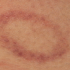 15-Year-Old Male with Asymptomatic Lesions On Thigh and Upper Arm