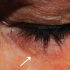58-year-Old Female with Asymptomatic Lesion Around Eyelid