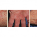 51-Year-Old-Woman with Tender Rash On Arms, Legs, and Hands