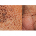 50-Year-Old Woman with Lesions on Soles, Wrists, and Palms