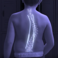 Magnetic Rod System Minimizes Invasive Scoliosis Procedures