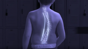 Magnetic Rod System Minimizes Invasive Scoliosis Procedures