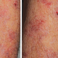 75-Year-Old Male with Symmetric, Asymptomatic Rash on Arms