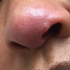 37-Year-Old Female with Rash on Tip of Nose