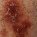37-Year-Old Male with Purpuric Eruptions on Lower Shins
