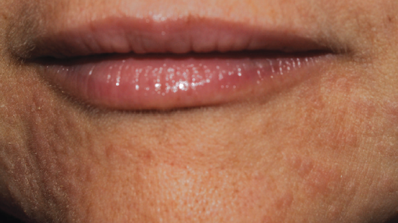 40-Year-Old Female with Perioral Rash Around Mouth - The