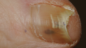 59-Year-Old Female with Asymptomatic Pigmentation Under Toenail