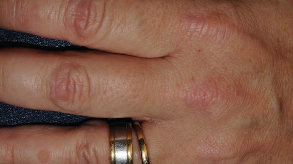 51 Year Old Female With Asymptomatic Rash On Hands