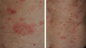 60-Year-Old Male with Asymptomatic Rash on Trunk and Extremities