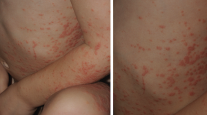3-Year-Old Male with Asymptomatic Rash on Trunk and Extremities