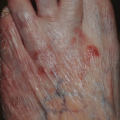 84-Year-Old Female with Rash on Left Foot