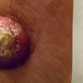 85-Year-Old Male with Skin Lesion on Upper Left Arm