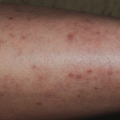 37-Year-Old Female with Intractable Pruritus on Leg