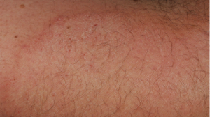 28-Year-Old Male with Pruritic Patch on Arm