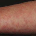 50-Year-Old Female with Discoloration on Arms