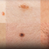 Can a Computer Really Diagnose Skin Cancer?