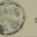 Chimerism Research Hits Milestone with Hybrid Human-Pig Embryo